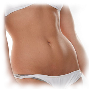 Tummy_Tuck_Transparent